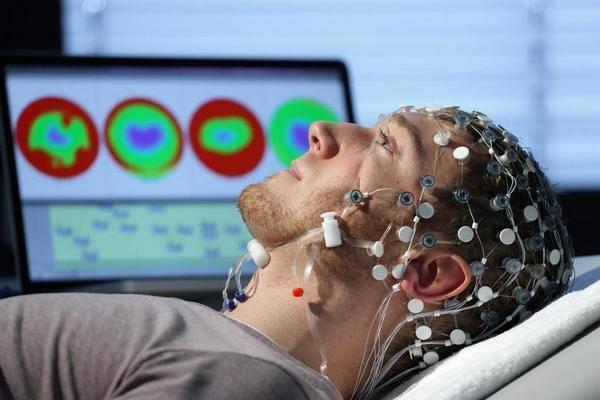 3D-визуализации мозга